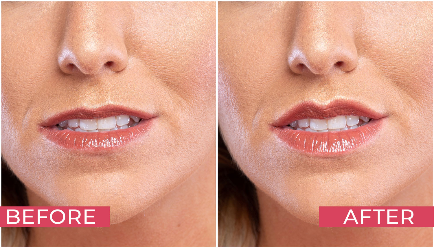 Retouching Lips - before/after